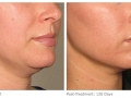 ultherapy-0132p-h_before-120daysafter_lower_low-res